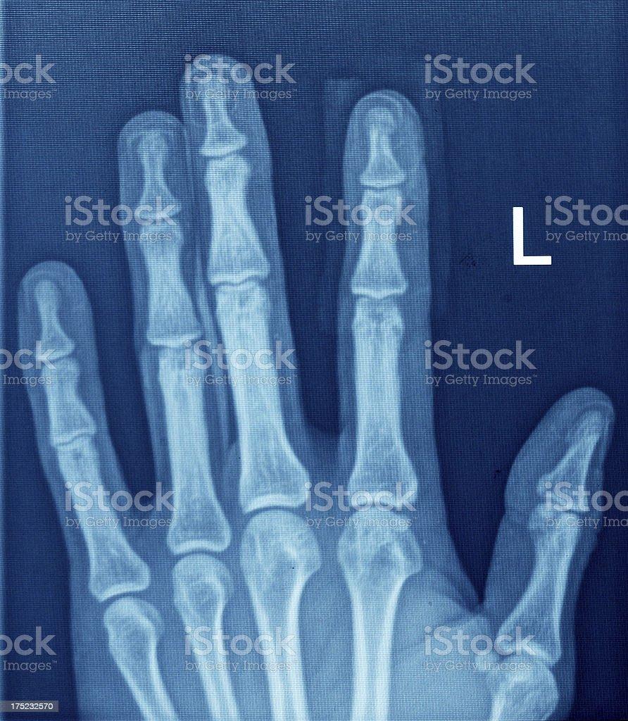 hand Xray stock photo