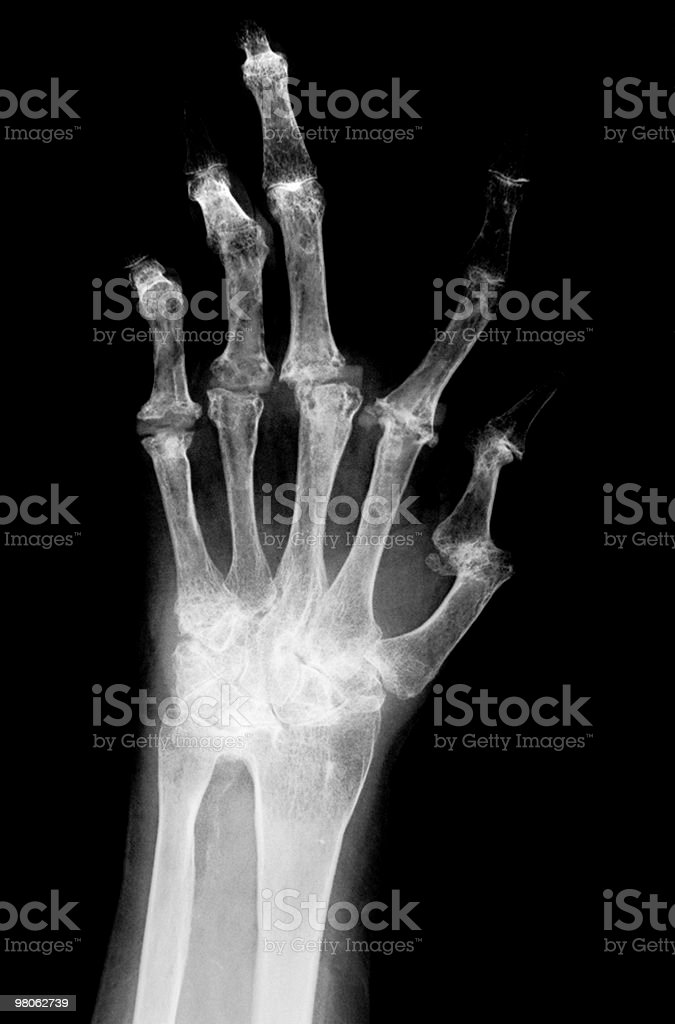 Hand x-ray royalty-free stock photo