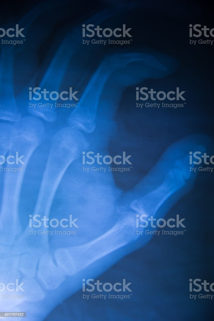 Hand x-ray view stock photo