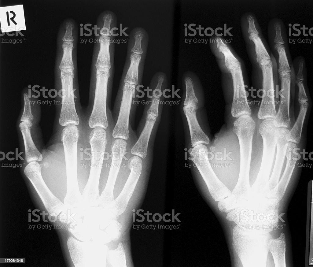 Hand X-rays royalty-free stock photo