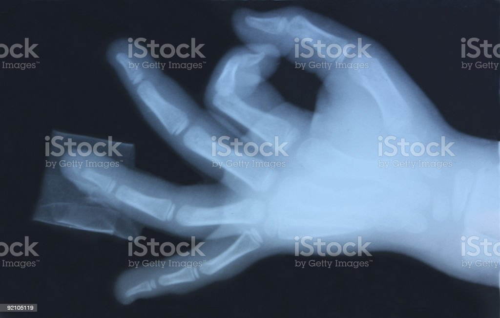 Hand_x-ray royalty-free stock photo