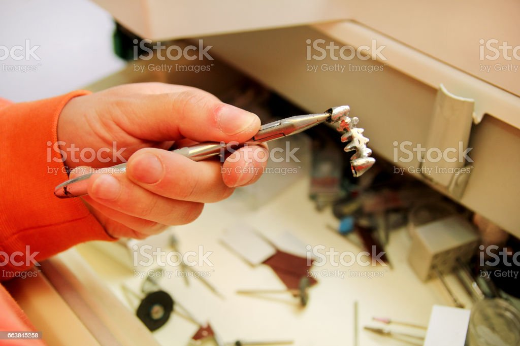 Hands is holding a steel metal dental crown. Dental prosthesis, dentures, prosthetics work. Dental technician in process of making dentures. Hands is holding a steel metal dental crown. Stomatology. stock photo