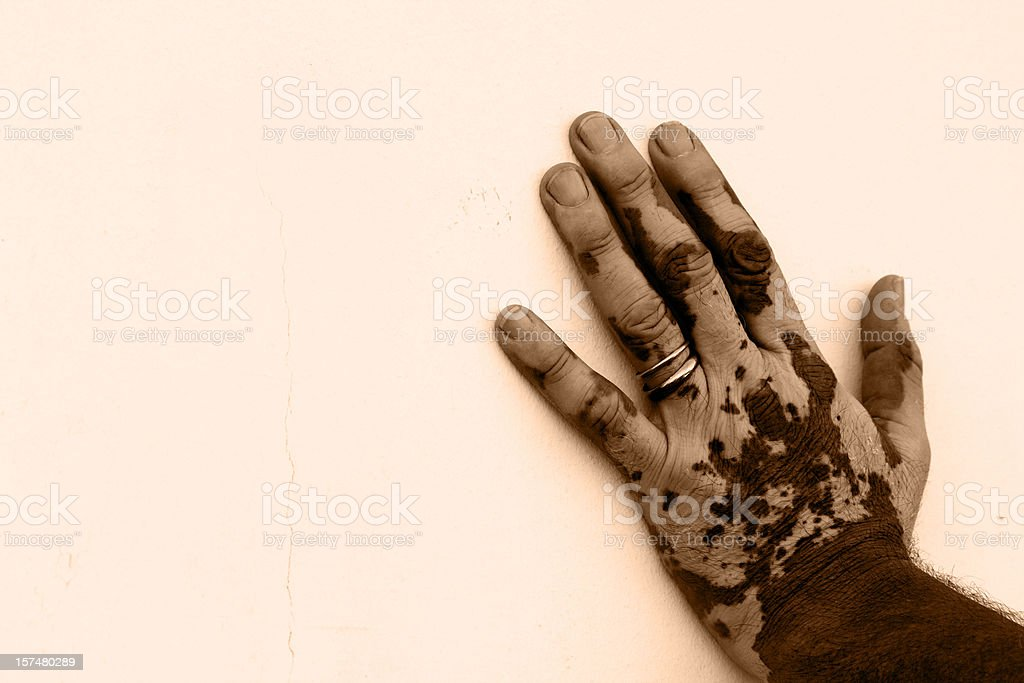 Hand's man affected by vitiligo royalty-free stock photo
