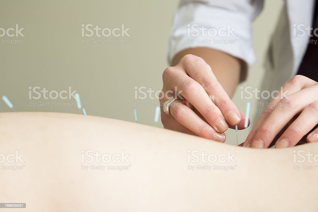 Hands of acupuncture therapist inserting a needle stock photo
