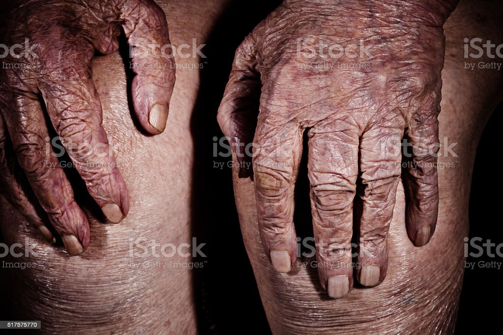 Hands of an old woman on her knees, detail stock photo
