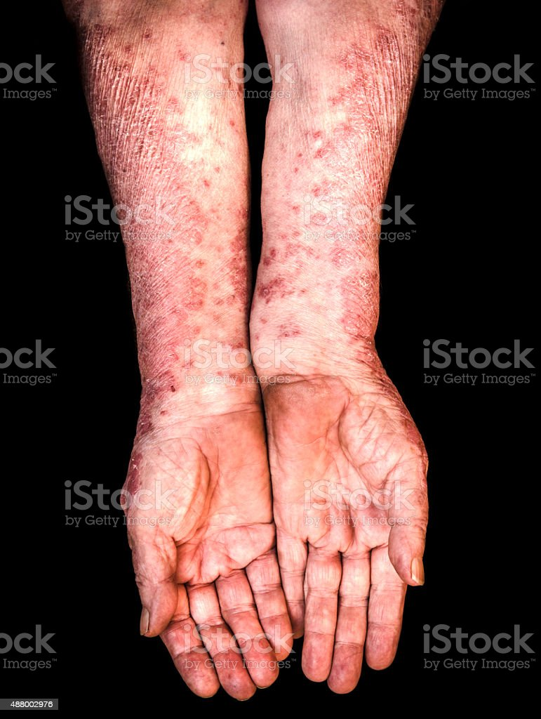 Hands with psoriasis stock photo