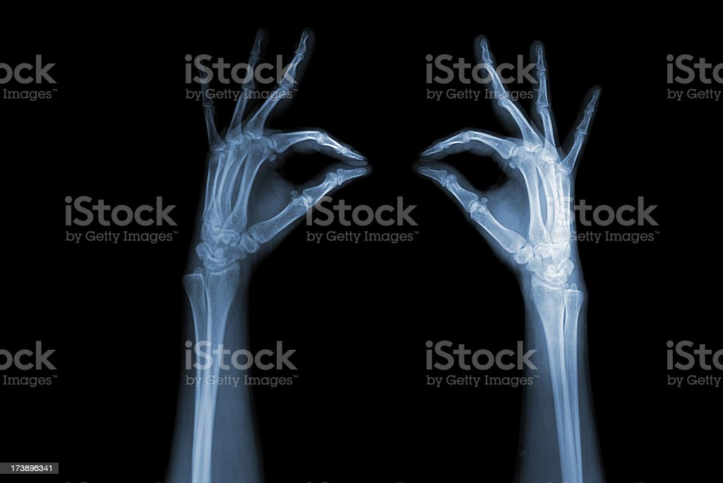hands x-ray stock photo