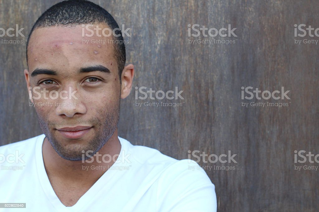Handsome ethnic young male with facial acne stock photo