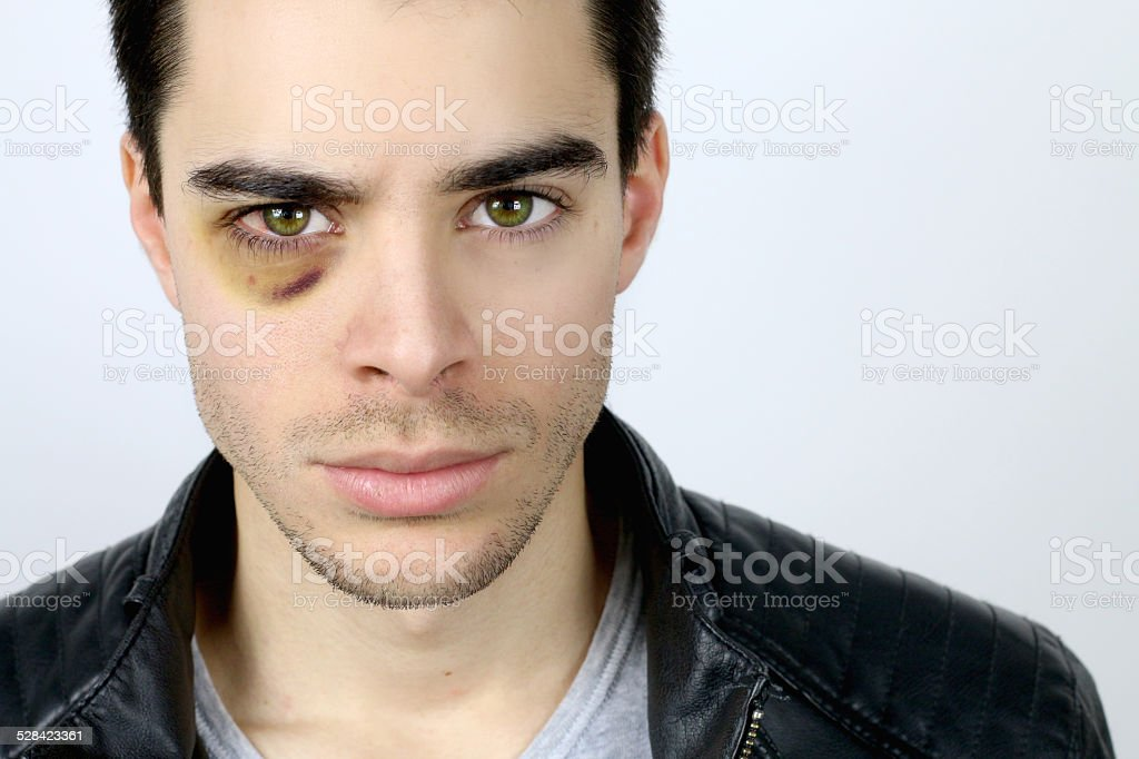handsome young man with a shiner stock photo