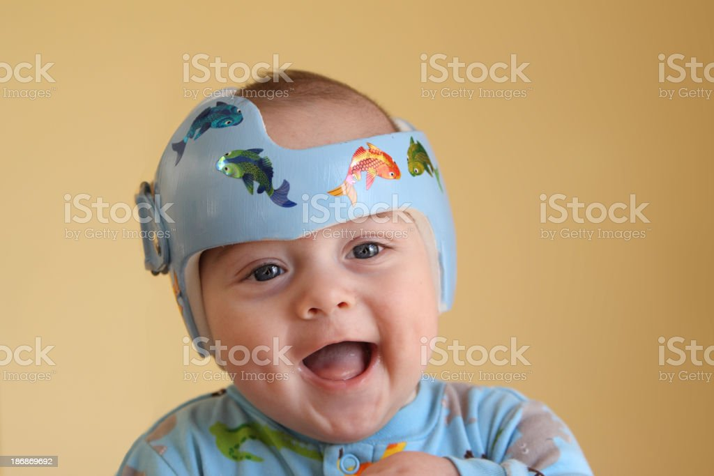 A happy baby boy getting plagiocephaly treatment stock photo