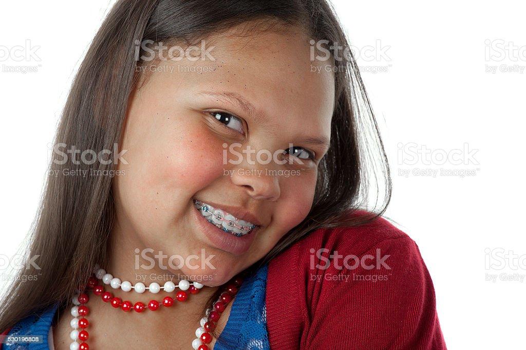 Happy with braces stock photo