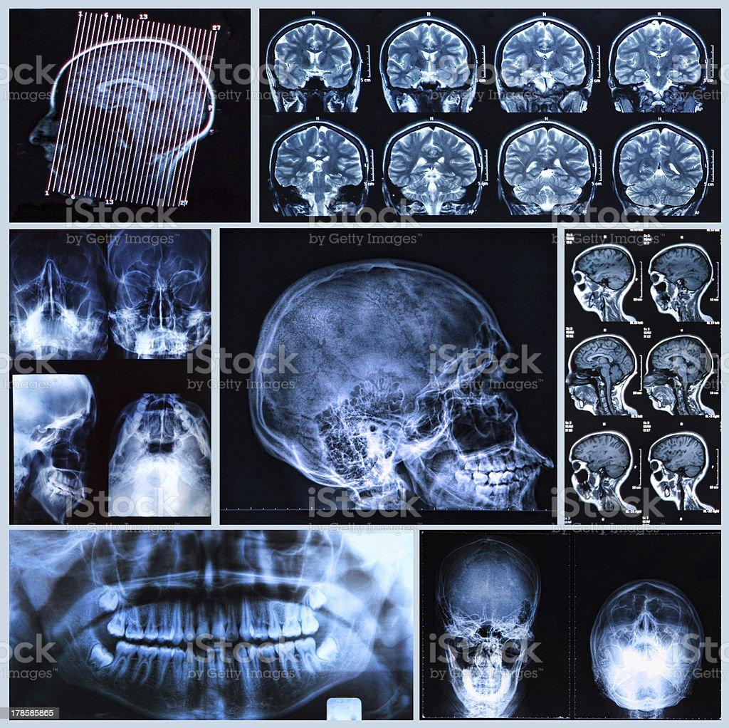 Head and neck anatomy stock photo