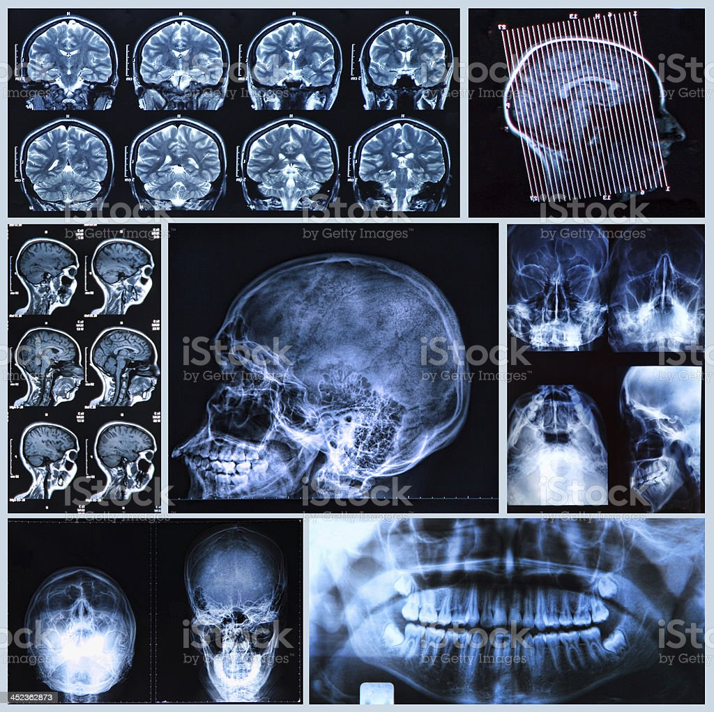 X-ray, tomography and MRI scans of the Human head