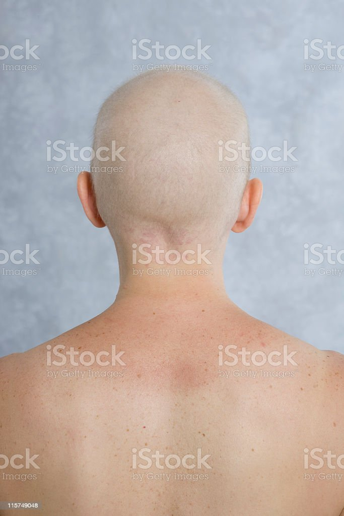 Head and shoulder from behind of balding woman. royalty-free stock photo
