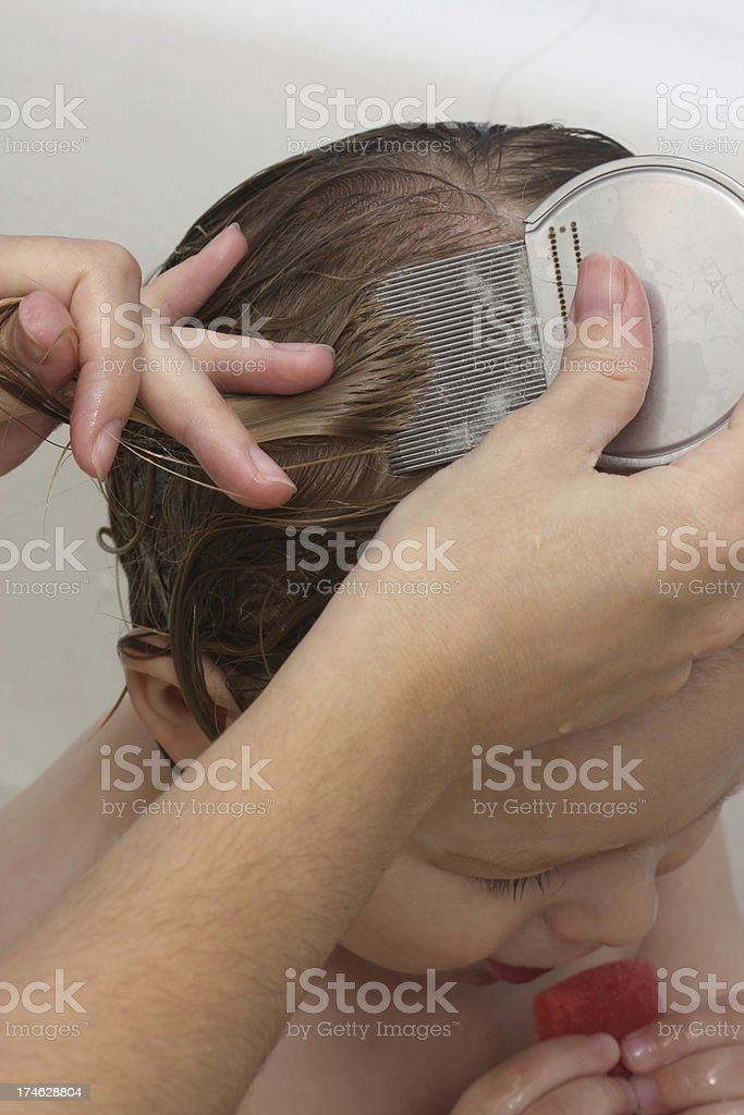 Head Louse Treatment stock photo