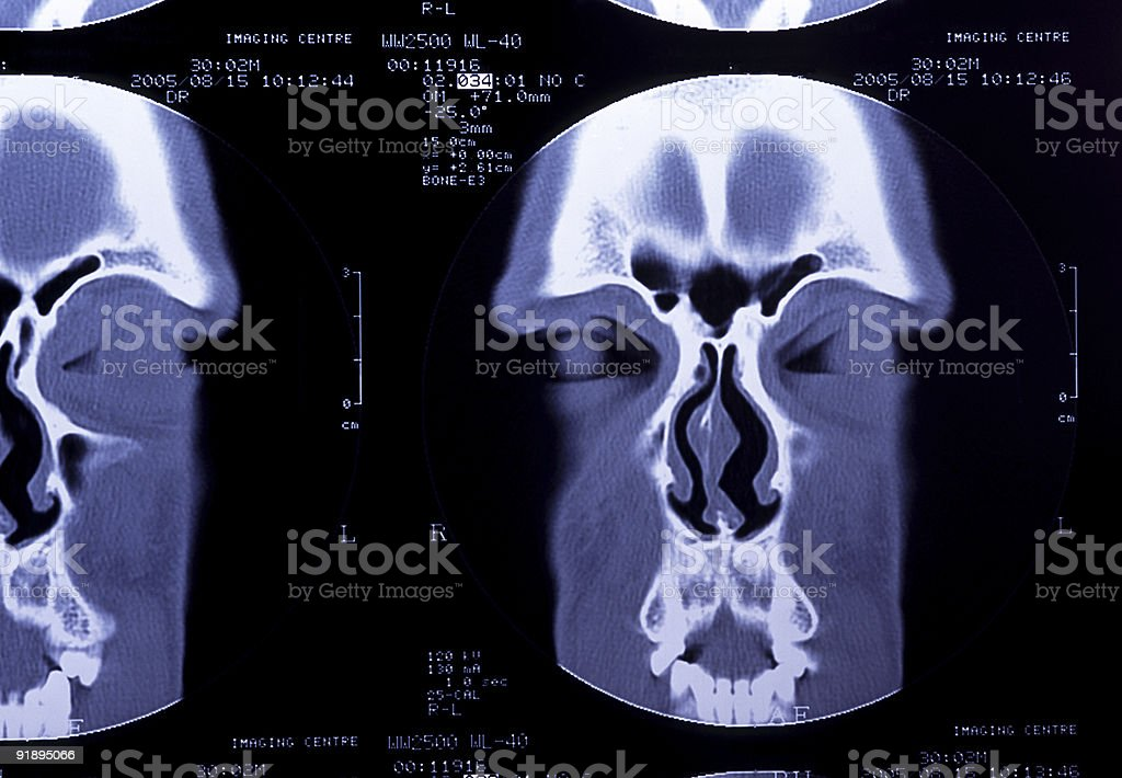 CT Head Scan Detail stock photo