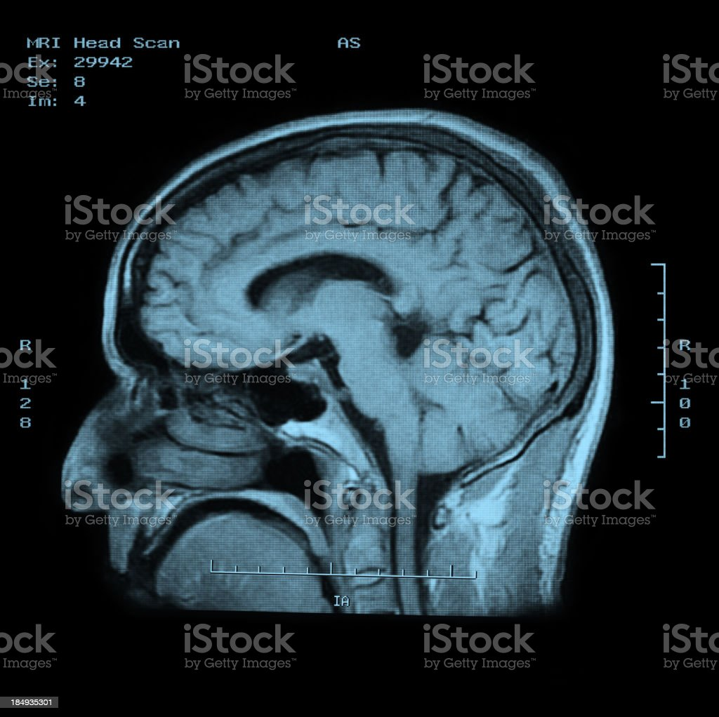 MRI Head Scan side view stock photo