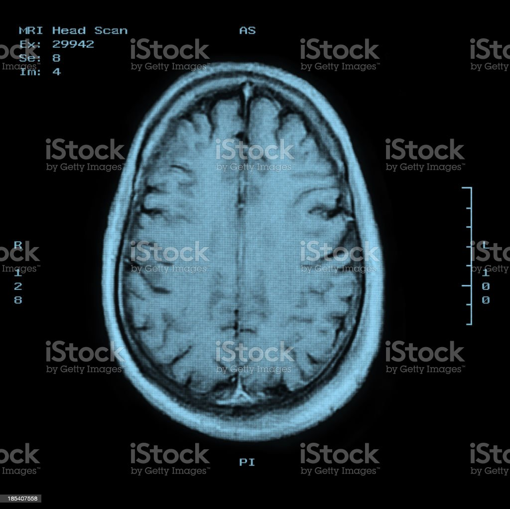 MRI Head Scan Top view stock photo