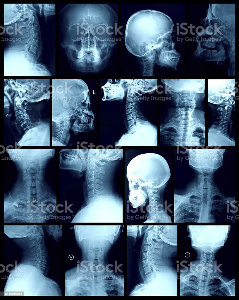 head X-ray image stock photo