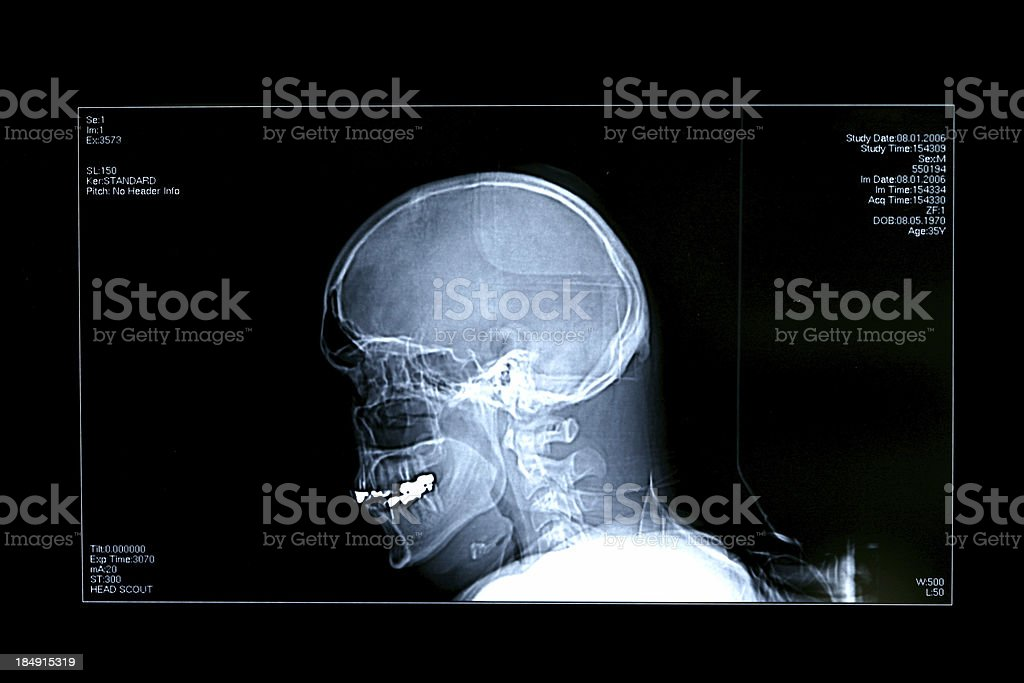 Head X-Ray stock photo
