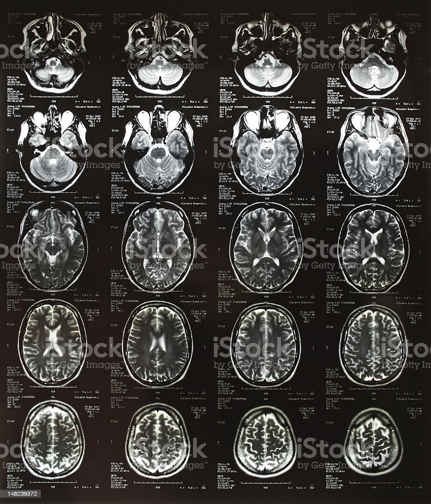 Head x-ray plates royalty-free stock photo