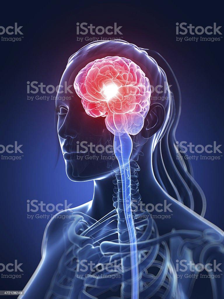 headache illustration stock photo