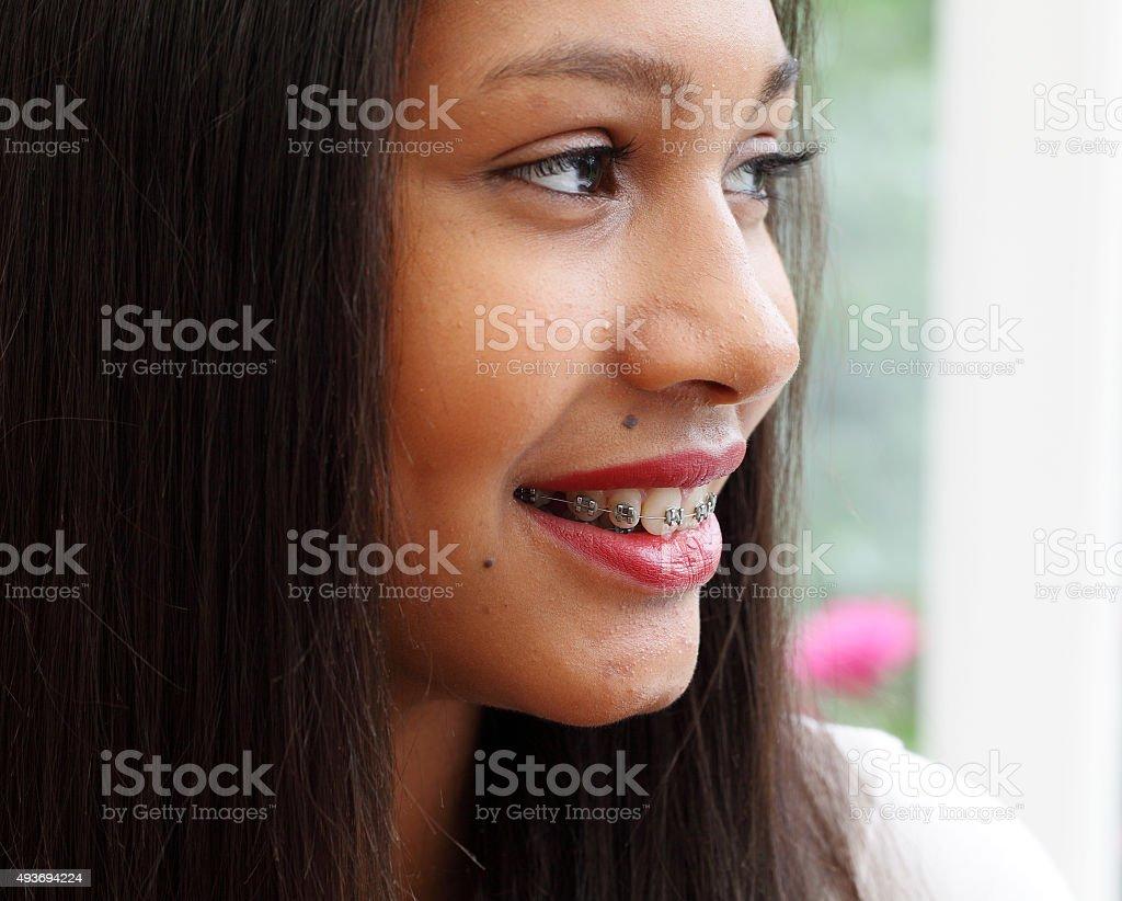 headshot of female teenager with brace stock photo
