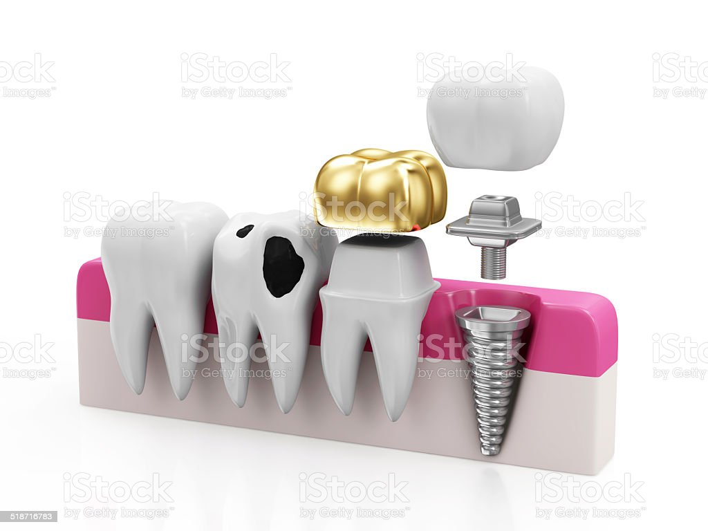 Health Tooth, Teeth with Caries, Golden Dental Crown and Implant stock photo