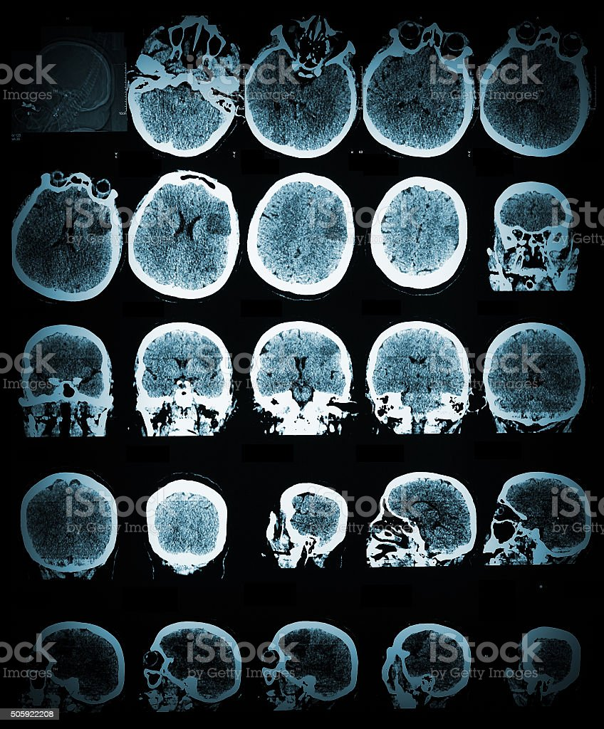 Healthcare and medical wallpaper with the CT scannimage stock photo