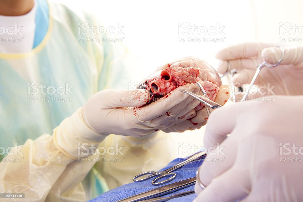 Healthcare: Medical students learn heart surgery procedure. stock photo