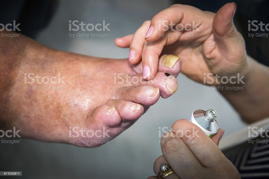 Healthcare worker applying ointment to diseased gout arthritic senior foot stock photo