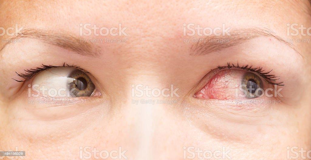 healthy and irritated eye stock photo