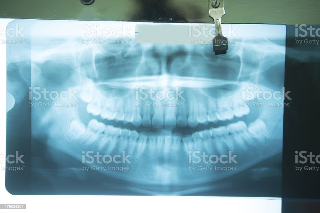 healthy mouth x-ray royalty-free stock photo