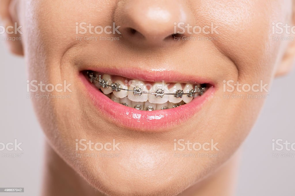 Healthy smile with braces stock photo