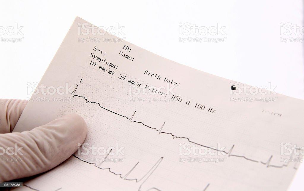 Heart Beats stock photo
