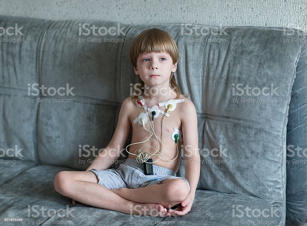 Heart cardiogram using Holter stock photo