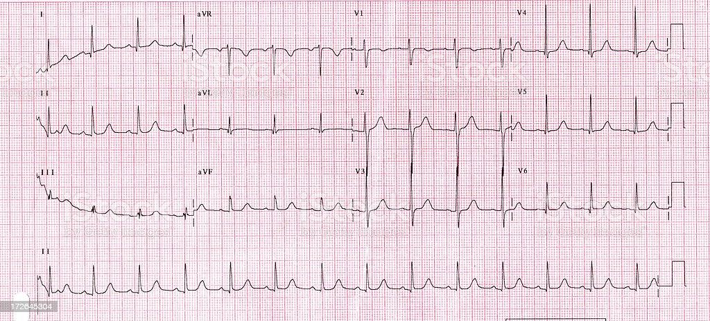 Heart Chart stock photo