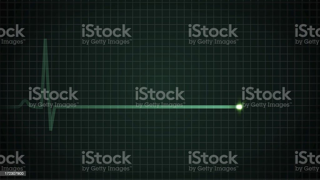 Heart Flatline EKG stock photo