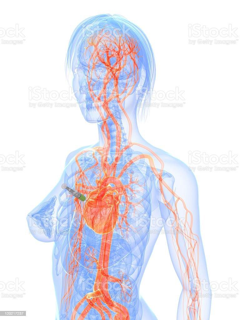 heart injection royalty-free stock photo