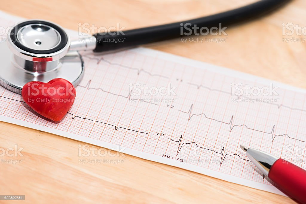 ECG heart monitor printout stock photo