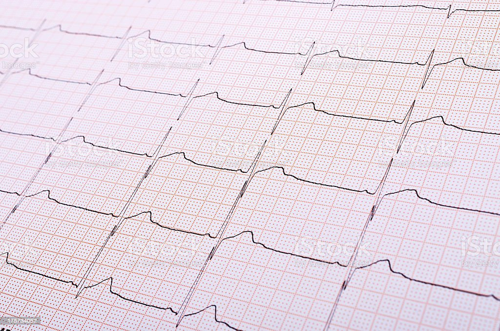 Heart rhythm chart royalty-free stock photo