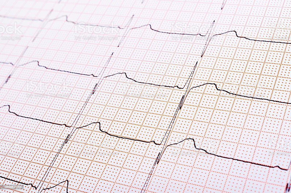 Heart rhythm chart stock photo