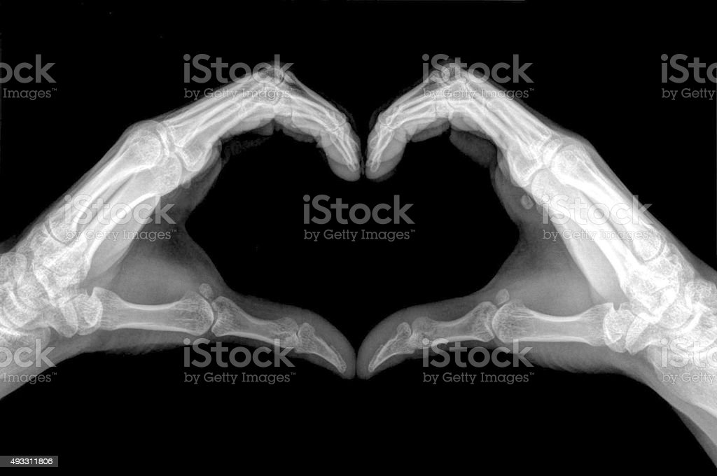 Heart sign shows by x-ray. stock photo