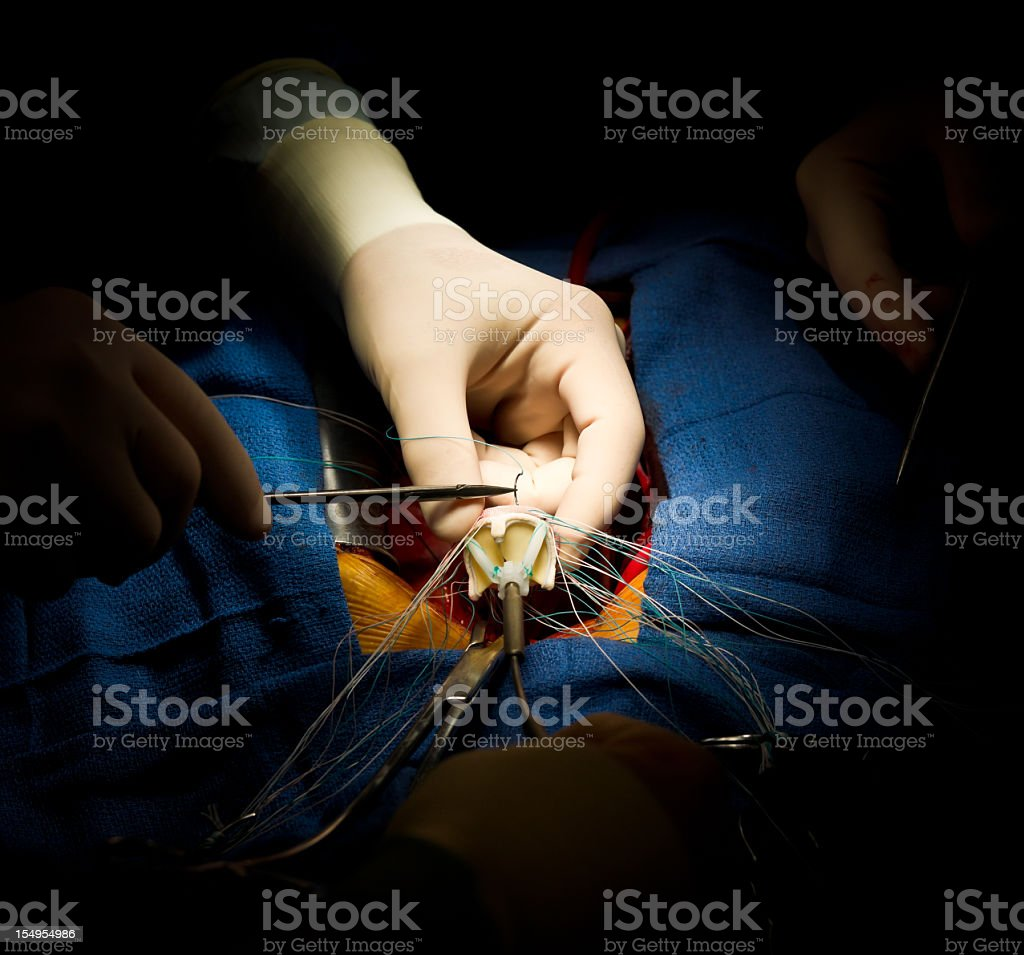 Heart Surgery Aortic Valve Replacement stock photo