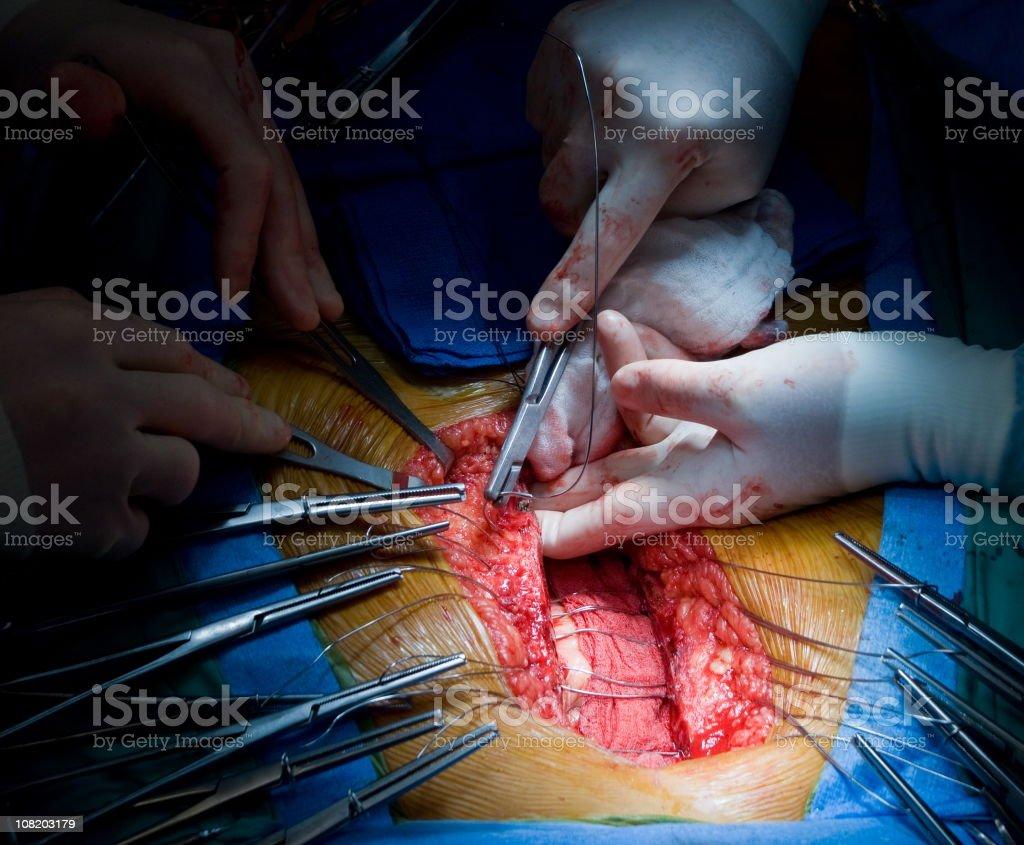 Heart Surgery - Sternal Closure stock photo