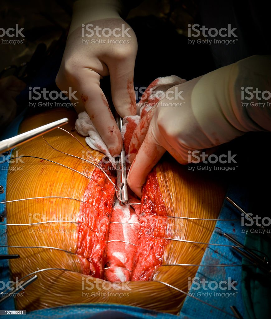 Heart Surgery - Sternal Closure stock photo