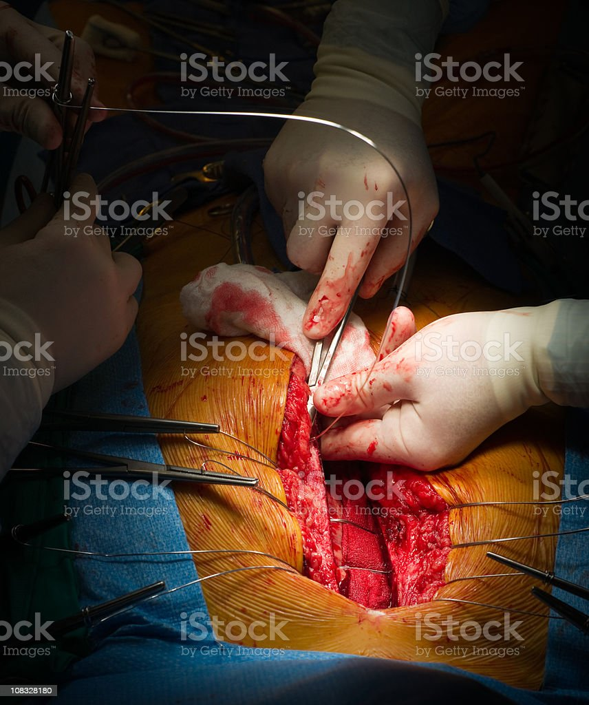 Heart Surgery - Sternal Closure with Stainless Wires stock photo