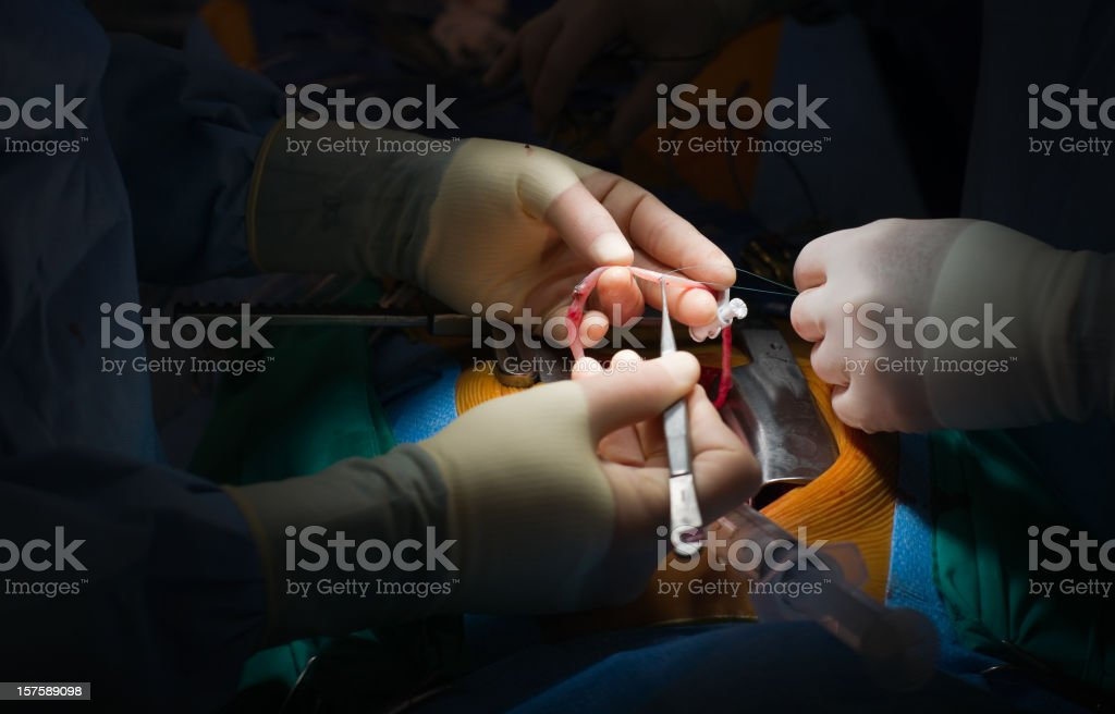 Heart Surgery - Vein Graft Preparation stock photo