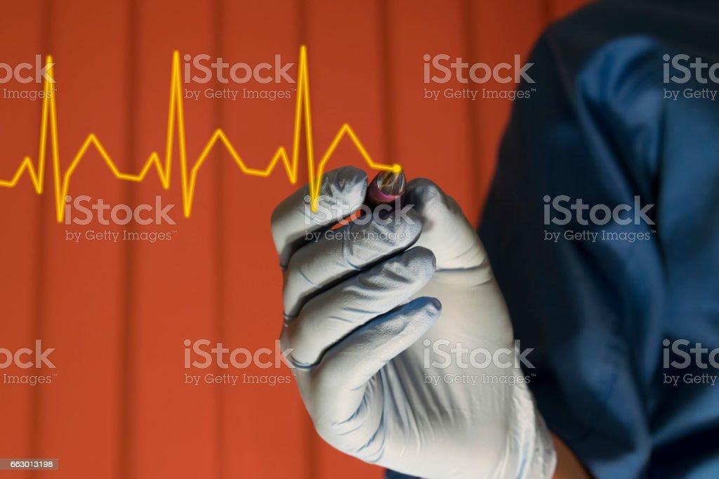 Heartbeat EKG stock photo