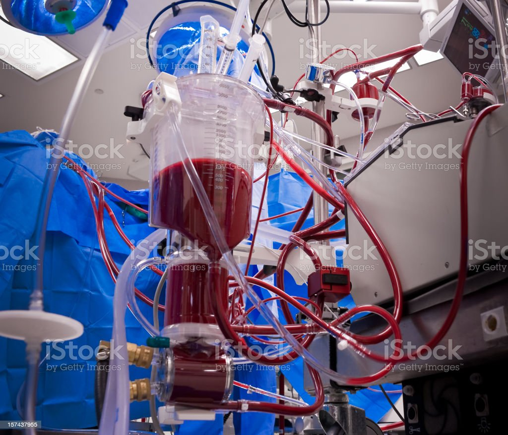 Heart-Lung Machine for Extracorporeal Circulation stock photo